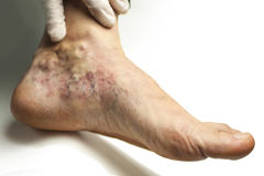 Varicose vein Royalty Free Stock Images