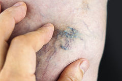 Varicose vein Stock Images