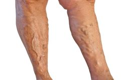 Varicose veins. Two tanned legs with varicose veins on white background royalty free stock photography