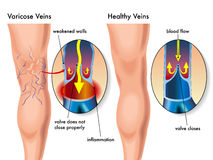 Varicose veins royalty free illustration