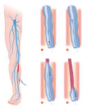 Varicose_veins Photo stock