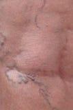 Varicose veins Royalty Free Stock Image