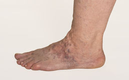 Varicose Veins. On A Female Foot royalty free stock photo