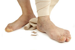 Varicose veins and bandage Stock Photography
