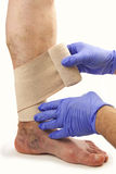 Varicose veins and bandage Royalty Free Stock Image
