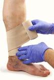 Varicose veins and bandage. Isolated on white background Royalty Free Stock Image