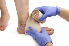 Varicose veins and bandage Royalty Free Stock Images