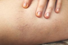 Varicose veins and capillary veins in the legs. Medical inspection and treatment stock image