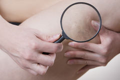 Varicose veins close up. Under a magnifying glass Royalty Free Stock Photography