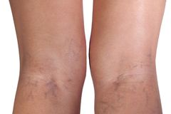 Varicose veins close up. Varicose veins on woman legs, close up stock photos