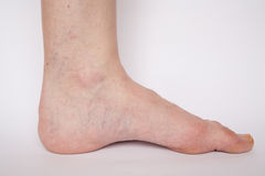 Varicose veins closeup Royalty Free Stock Photos