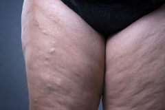 Varicose veins closeup, thick female legs Royalty Free Stock Photos