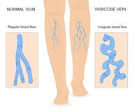 Varicose Veins Concept Banner Card with Elements. Vector. Varicose Veins Concept Banner Card with Elements Regular and Irregular Blood Flow Medicine Health Care royalty free illustration