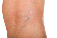 Varicose veins on female leg. Close up picture of young female`s varicose veins on the leg royalty free stock photo