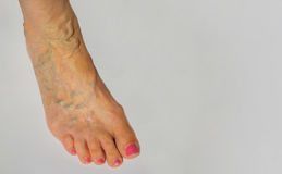 Varicose veins on a female leg Royalty Free Stock Photography