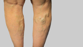 Varicose veins on a female legs. The varicose veins on a legs of old woman on gray stock photos