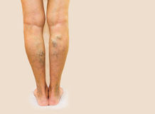 Varicose veins on a female legs. The varicose veins on a legs of old woman on gray stock images