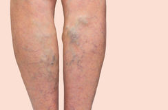 Varicose veins on a female legs stock images