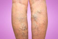 Varicose veins on a female legs. The varicose veins on a legs of old woman on pink stock image