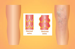 Varicose veins on a female senior leg Royalty Free Stock Photos
