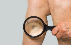 Varicose veins on a female senior leg Stock Photo
