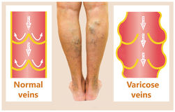 Varicose veins on a female senior leg. S. The structure of normal and varicose veins royalty free stock photography