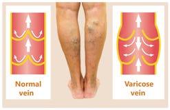 Varicose veins on a female senior leg Stock Image
