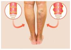 Varicose veins on a female senior leg Royalty Free Stock Photography