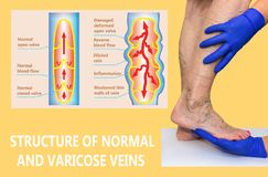 Varicose veins on a female senior legs. The structure of normal and varicose veins. Concept of dry skin, old senior people, varicose veins and deep vein royalty free illustration