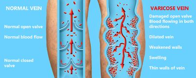 Varicose veins on a female senior legs. The structure of normal and varicose veins. Concept of dry skin, old senior people, varicose veins and deep vein stock illustration