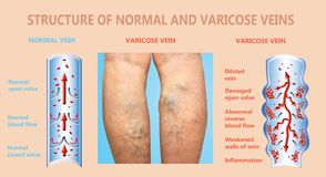 Varicose veins on a female senior legs. The structure of normal and varicose veins. Concept of dry skin, old senior people, varicose veins and deep vein royalty free stock photos