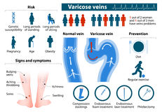 Varicose Veins. Health problems. medicine in medical infographics. elements and icons for design. concept Stock Images