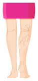 Varicose veins on human legs Royalty Free Stock Images