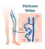 Varicose veins with irregular blood flow and healthy veins vector illustration diagram scheme. Varicose veins are veins that have become enlarged and twisted Stock Photography