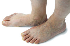 Varicose veins Royalty Free Stock Images
