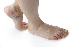 Varicose veins. Isolated on white background Royalty Free Stock Images