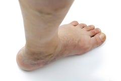 Varicose veins Stock Image