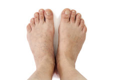 Varicose veins. Stock Images