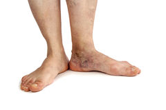 Varicose veins. Isolated on white background Stock Photography