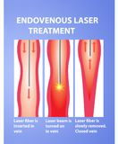 Varicose Veins and laser. Endovenous laser treatment vector illustration