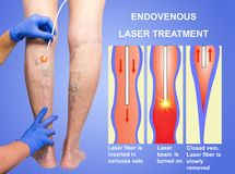 Varicose Veins and laser. Varicose Veins. Endovenous laser treatment of female legs royalty free stock image