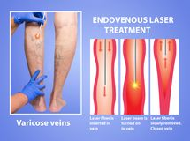 Varicose Veins and laser. Varicose Veins. Endovenous laser treatment of female legs royalty free stock photo