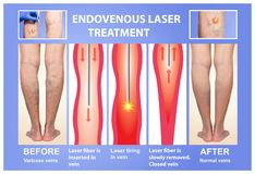 Varicose Veins and laser. Varicose Veins. Endovenous laser treatment of female legs royalty free stock images