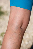 Varicose veins. On a leg Royalty Free Stock Images