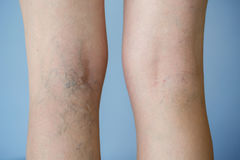 Varicose veins. On a leg royalty free stock photos