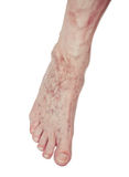 Varicose Veins on the leg Royalty Free Stock Photography