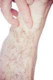 Varicose Veins on the leg Stock Photo
