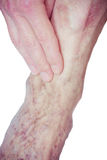 Varicose Veins on the leg Royalty Free Stock Photos