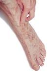 Varicose Veins on the leg Stock Photography