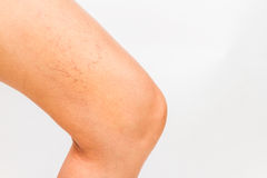 Varicose veins on a leg. Royalty Free Stock Photos